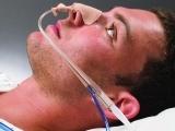 Advanced CMA: Nasogastric/Gastrostomy/Respiratory