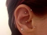 Ear Acupressure Point: An Introduction