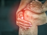 Arthritis in the Hips & Knees