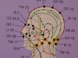 Acupressure for Headaches & Neck Pain
