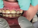 SDF for the Dental Practice