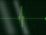 EKG TECHNICIAN HEA102