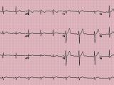 EKG Technician Certification Program