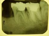 Techniques in Dental Radiology for Dental Assistants (Hybrid)