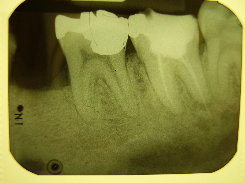 Original source: https://upload.wikimedia.org/wikipedia/commons/thumb/1/13/Dental_X-ray112.JPG/1280px-Dental_X-ray112.JPG