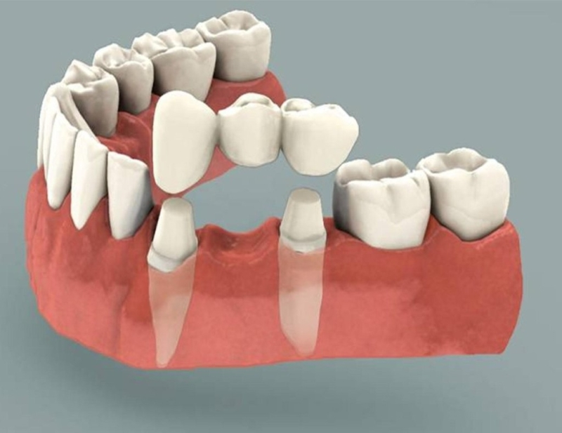 Original source: http://www.orasurgedentalclinic.com/wp-content/uploads/2018/02/Crowns-and-Bridges.jpg